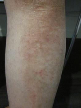 Eczema 2 Leg